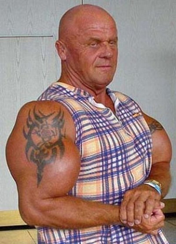 Synthol Injections