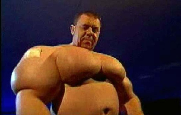 Injecting Synthol Gone Wrong (47 pictures) – Memolition