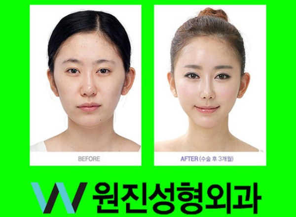 Extreme Teen Plastic Surgery Part 118