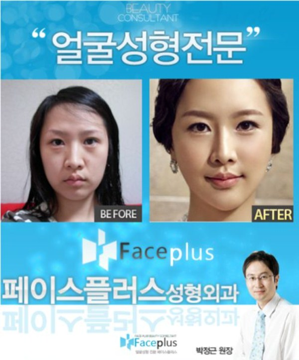 Extreme Teen Plastic Surgery Part 55