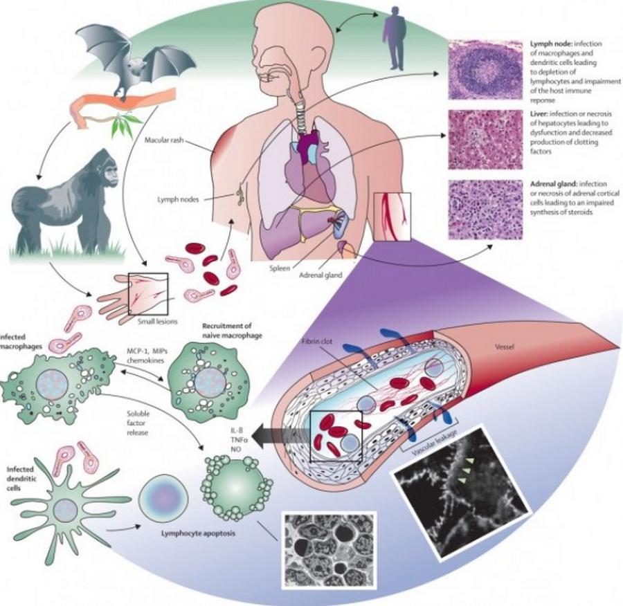 Ebola-Ravaging-West-2