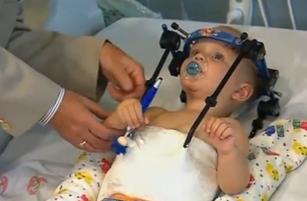 Toddler-Head-Reattached-3