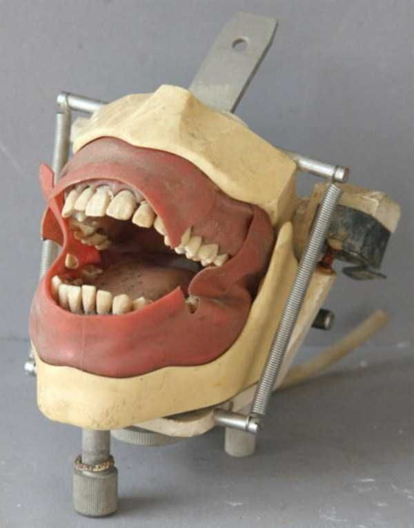 dental-equipment-from-the-past-14